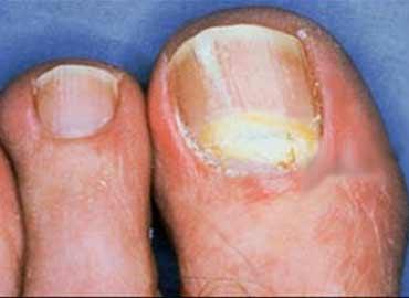 Síntomas de onicomicosis