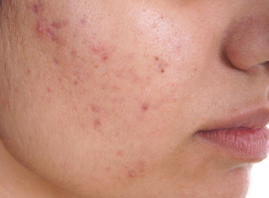 ¿Qué es y que causa el acné?