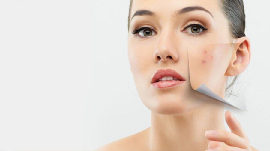 Tratamiento para curar el acné