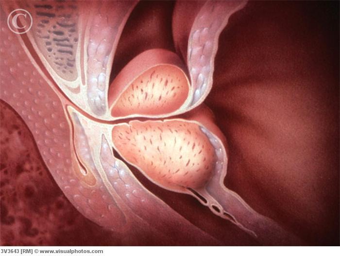 Agrandamiento de la próstata