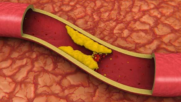 ¿Que causa el colesterol alto?