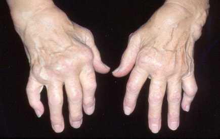 ¿Que es la artritis reumatoide?