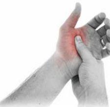 síntomas de artritis reumatoide