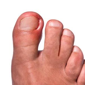 Las uñas encarnadas y sus causas