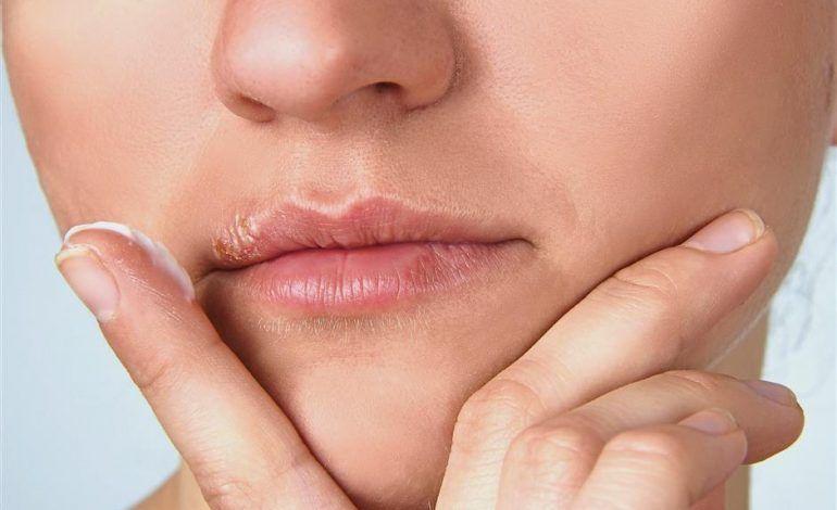 ¿Que es el Herpes Oral?