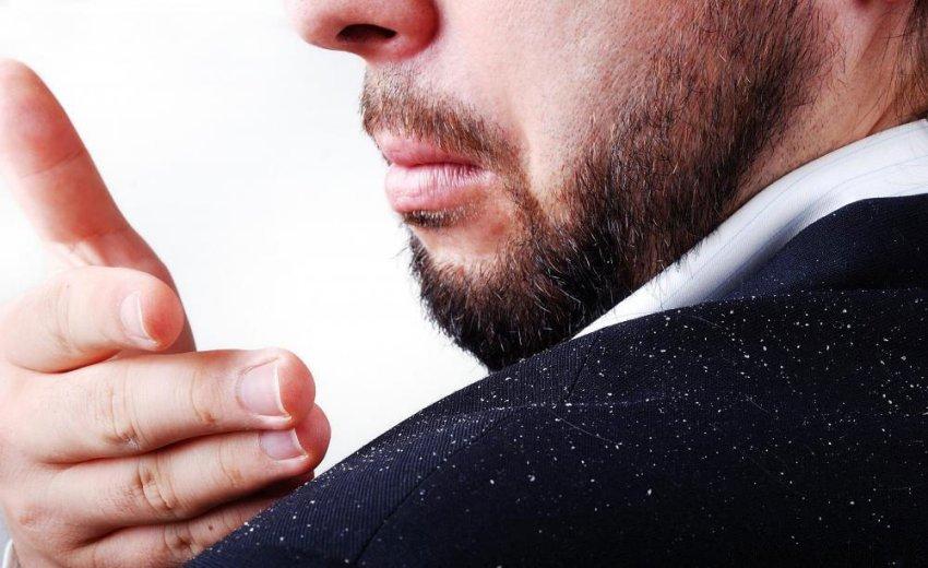 La caspa síntomas, causas y tratamiento