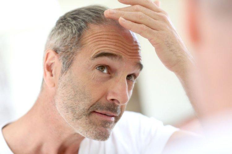 Los 17 mejores alimentos para detener la caída del cabello