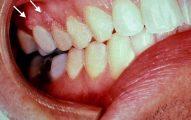 1 de cada 9 hombres tiene VPH Oral