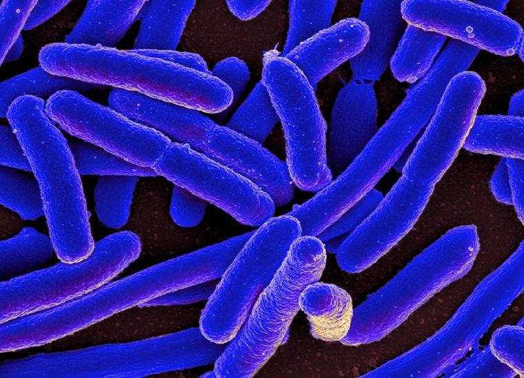 Escherichia coli o E. coli