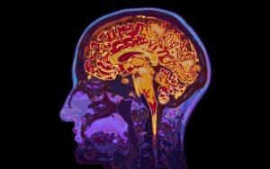 Las 4 toxinas mas peligrosas para el cerebro