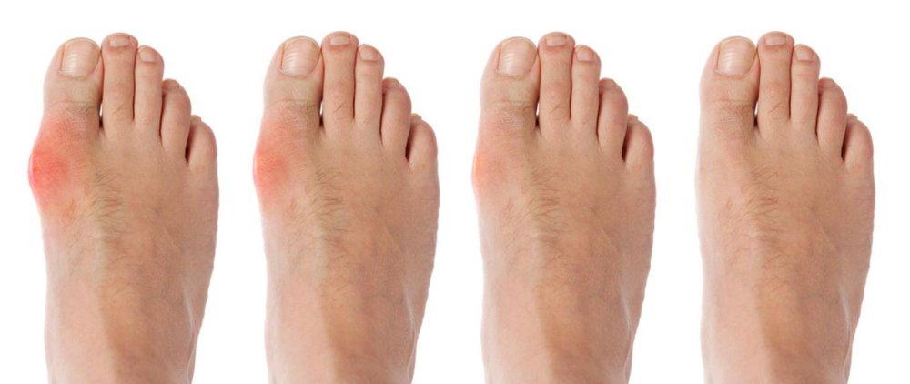 Un dedo gordo del pie agrandado