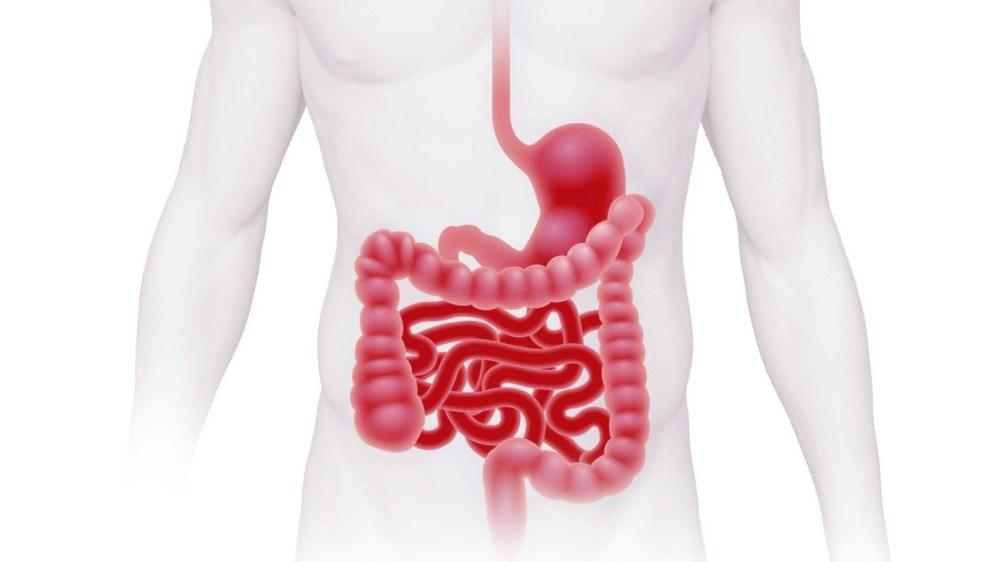 ¿Qué es el síndrome del intestino irritable?