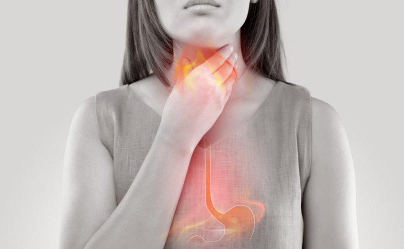 El reflujo ácido | síntomas, causas y que comida evitar